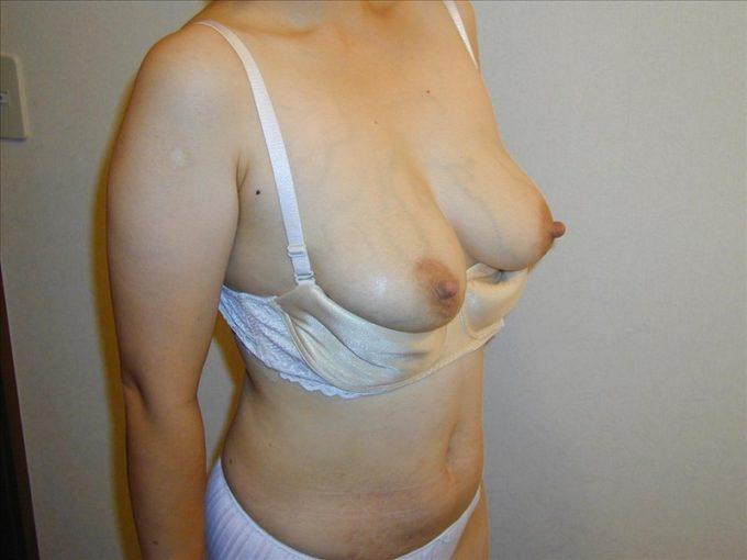 tits-11820-071